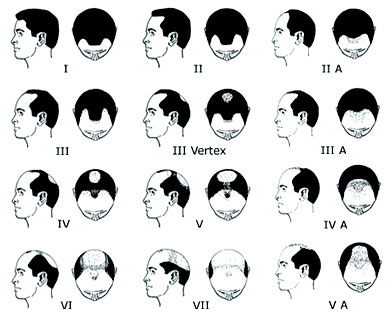 Norwood skalan används för att mäta håravfall - allt om manligt håravfall