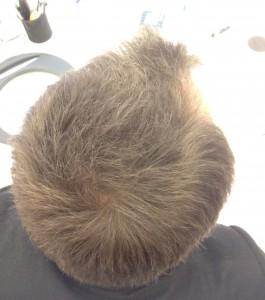 Efter att jag använt en hårconcealer
